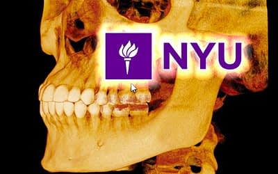 NYU – Predicibilità dei piani di trattamento in implantologia tramite Chirurgia guidata su base modello